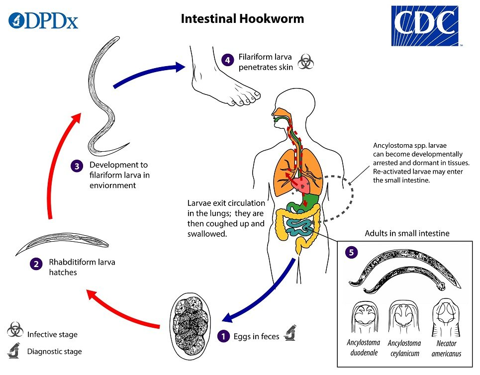 Intestinal Hookworm